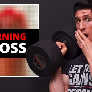 I Dropped a 95 lb Dumbbell on My Toe!! (HERE'S WHAT HAPPENED)